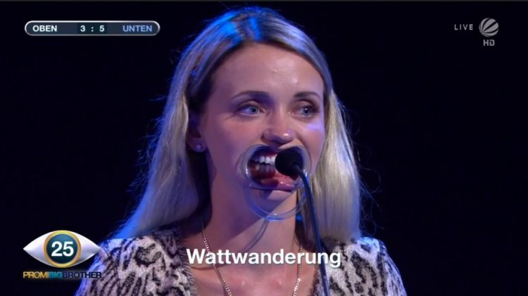Cathy Lugner Wangenspreizer